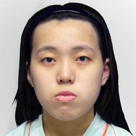 陳怡傑 正顎削骨