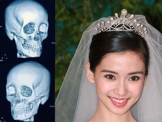 Angelababy結婚照