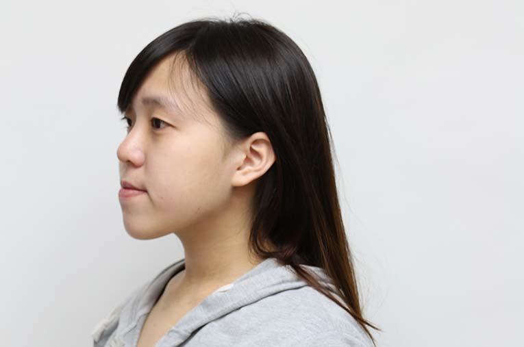 正顎手術改善咬合不正